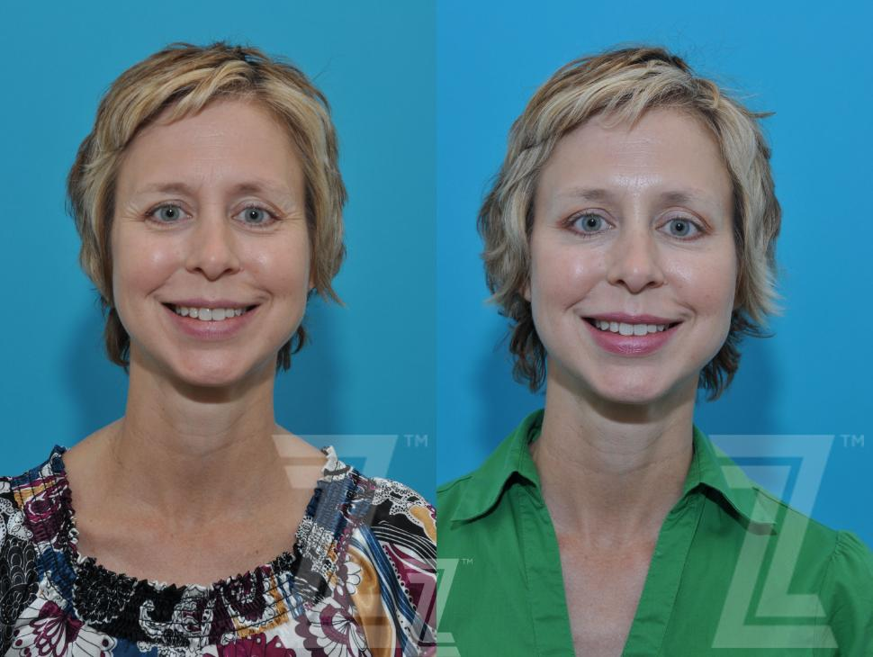 BOTOX® Cosmetic Before & After Photo | Austin, TX | The Piazza Center for Plastic Surgery & Advanced Skin Care