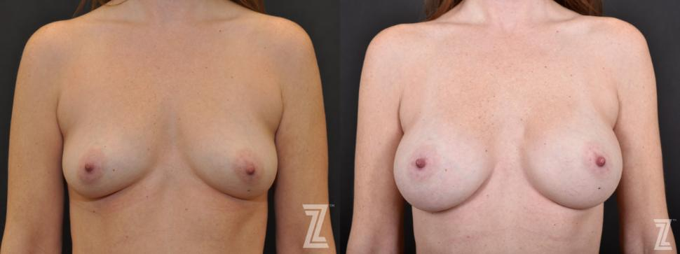 Breast Augmentation Before & After Photo | Austin, TX | The Piazza Center for Plastic Surgery & Advanced Skin Care