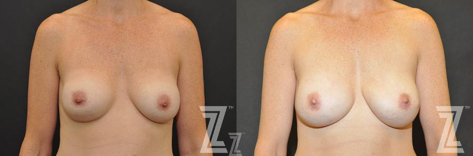 Breast Reconstruction Before & After Photo | Austin, TX | The Piazza Center for Plastic Surgery & Advanced Skin Care