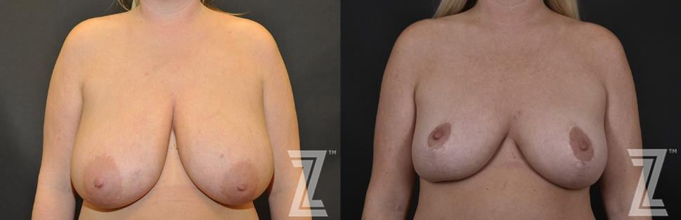 Breast Reduction Before & After Photo | Austin, TX | The Piazza Center for Plastic Surgery & Advanced Skin Care
