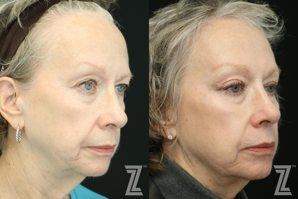Brow Lift Before & After Photo | Austin, TX | The Piazza Center for Plastic Surgery & Advanced Skin Care
