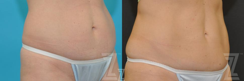 CoolSculpting® Before & After Photo | Austin, TX | The Piazza Center for Plastic Surgery & Advanced Skin Care