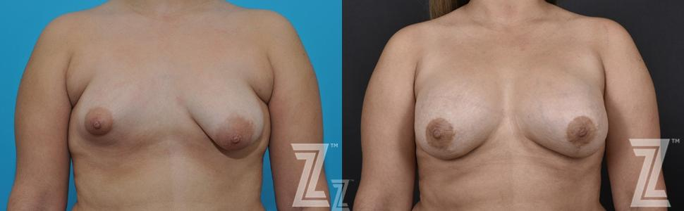 Correction of Breast Asymmetry Before & After Photo | Austin, TX | The Piazza Center for Plastic Surgery & Advanced Skin Care