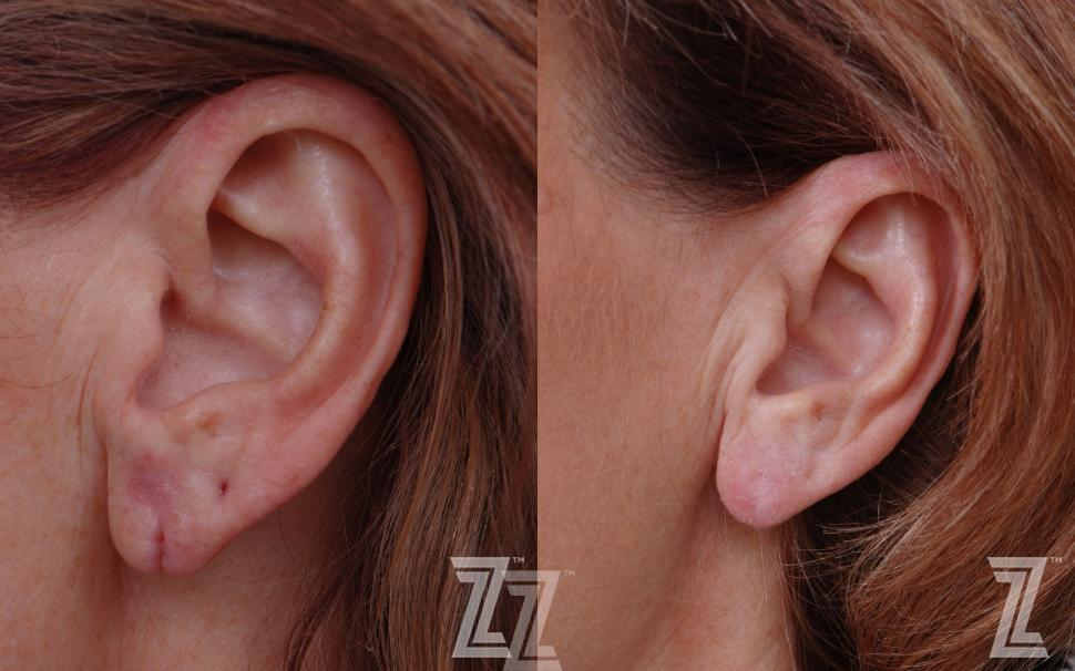 Earlobe Repair Before & After Photo | Austin, TX | The Piazza Center for Plastic Surgery & Advanced Skin Care