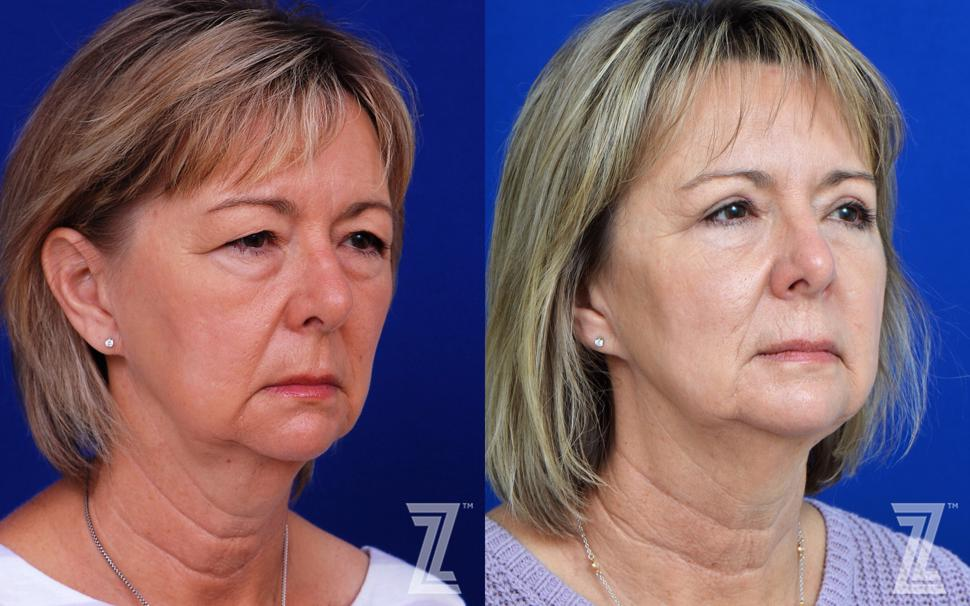 Eyelid Surgery Before & After Photo | Austin, TX | The Piazza Center for Plastic Surgery & Advanced Skin Care