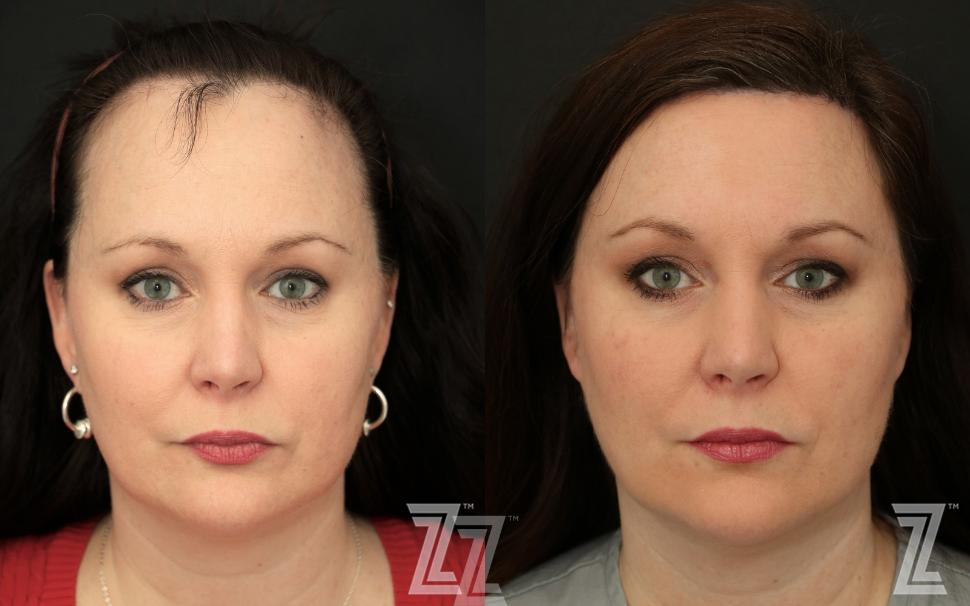 Hairline Lowering Before & After Photo | Austin, TX | The Piazza Center for Plastic Surgery & Advanced Skin Care