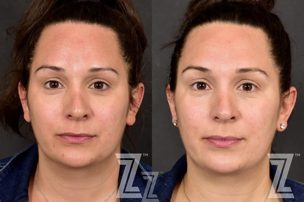HALO Before & After Photo | Austin, TX | The Piazza Center for Plastic Surgery & Advanced Skin Care