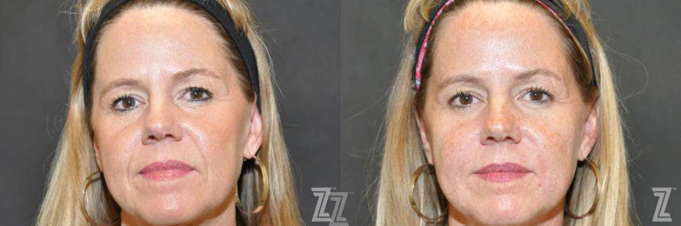 Injectable Fillers Before & After Photo | Austin, TX | The Piazza Center for Plastic Surgery & Advanced Skin Care