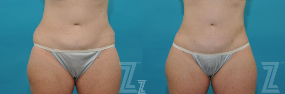 Liposuction Before & After Photo | Austin, TX | The Piazza Center for Plastic Surgery & Advanced Skin Care