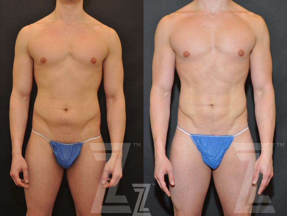 Liposuction Before After Photo Gallery Austin Tx The Piazza Center For Plastic Surgery Advanced Skin Care