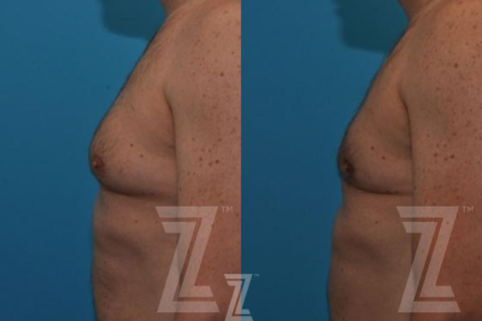 Male Breast Reduction Before & After Photo | Austin, TX | The Piazza Center for Plastic Surgery & Advanced Skin Care