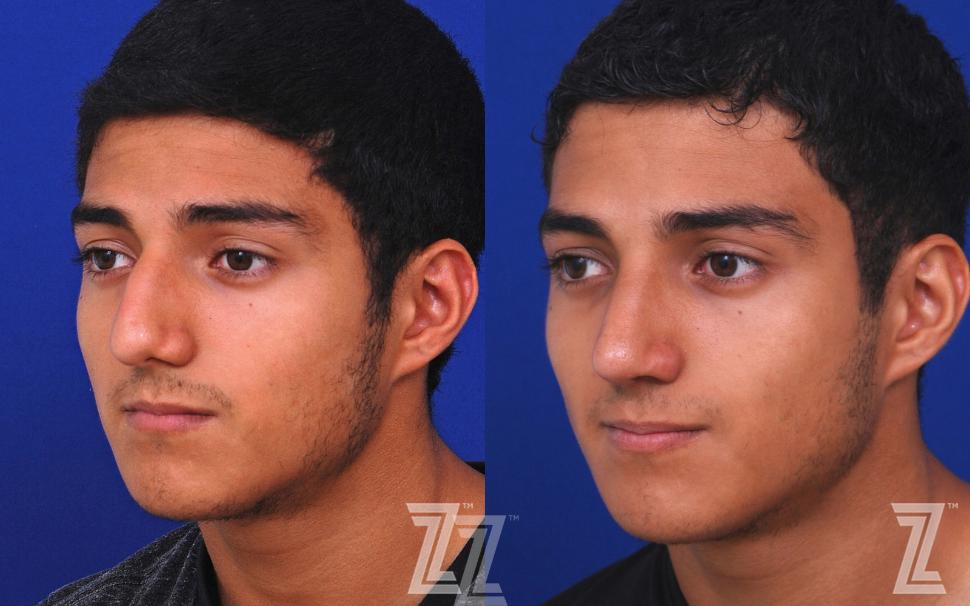 Male Rhinoplasty Before & After Photo | Austin, TX | The Piazza Center for Plastic Surgery & Advanced Skin Care