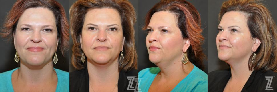 Micropigmentation Before & After Photo | Austin, TX | The Piazza Center for Plastic Surgery & Advanced Skin Care