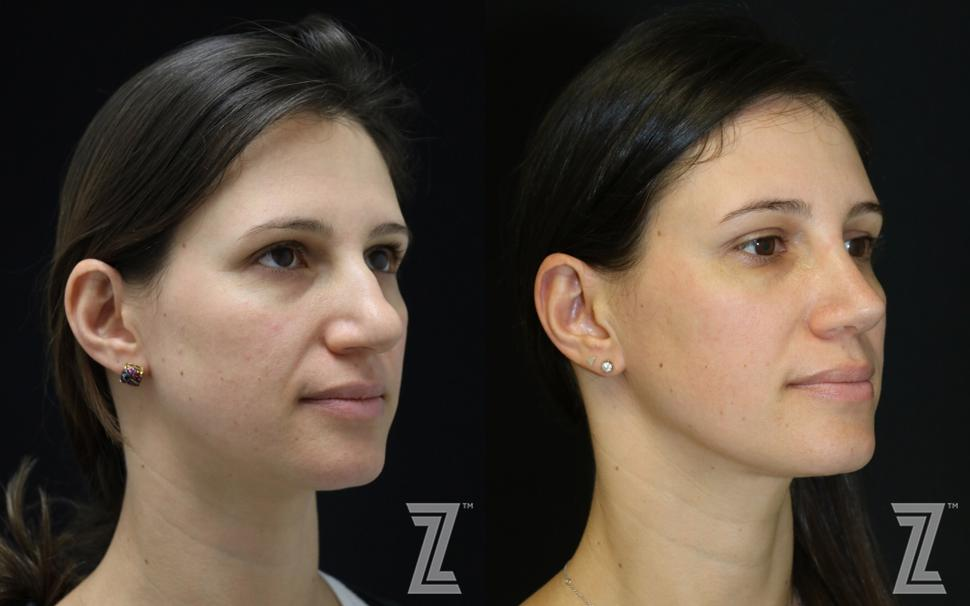 Otoplasty (Ear Surgery) Before & After Photo | Austin, TX | The Piazza Center for Plastic Surgery & Advanced Skin Care