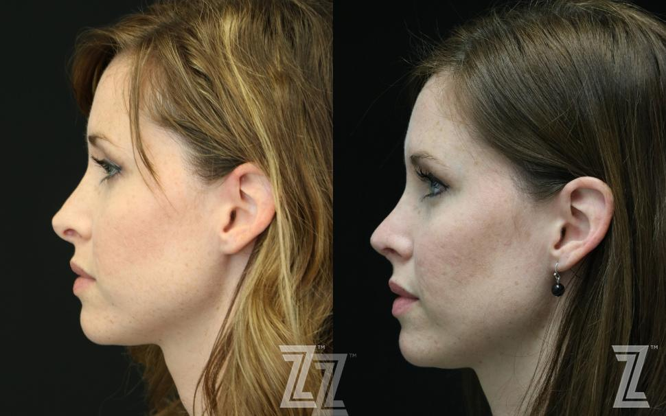 Revision Rhinoplasty Before & After Photo | Austin, TX | The Piazza Center for Plastic Surgery & Advanced Skin Care