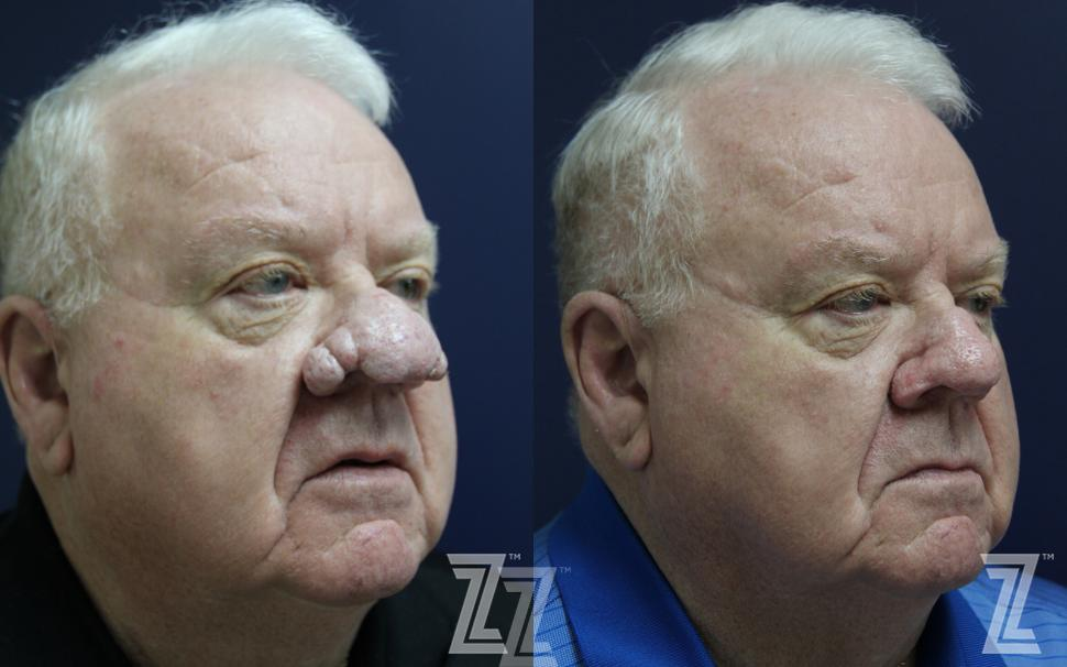 Rhinophyma Before & After Photo | Austin, TX | The Piazza Center for Plastic Surgery & Advanced Skin Care