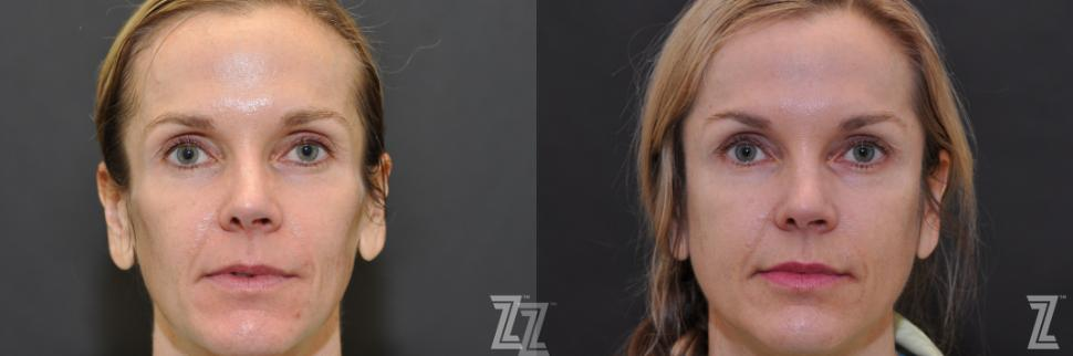 Sculptra® Before & After Photo | Austin, TX | The Piazza Center for Plastic Surgery & Advanced Skin Care