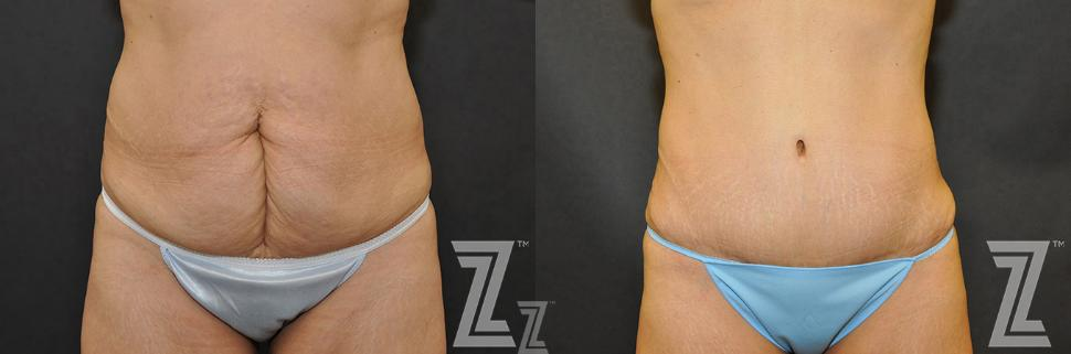 Tummy Tuck Before & After Photo | Austin, TX | The Piazza Center for Plastic Surgery & Advanced Skin Care